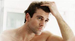 alopecia masculina